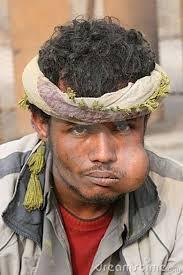 A qat addict in Yemen